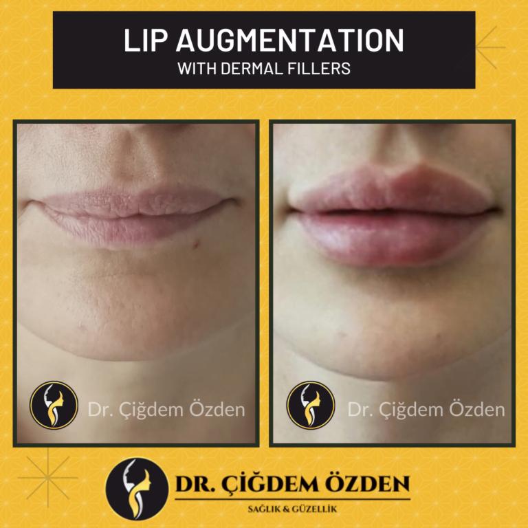 lip-filler-before-after-drcigdemozden