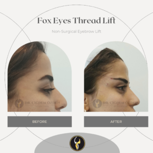 fox-eyes-thread-before-after