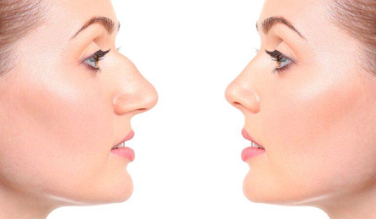nose-thread-lift